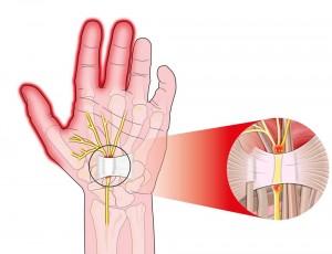 karpaltunnelsyndrom nerven-1000