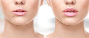Lippen aufspritzen Vergleich