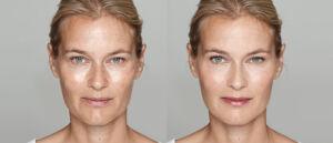 Vorher und Nachher: Laserbehandlung Haut im Gesicht Vergleich
